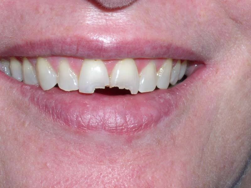 damaged front teeth before dental bonding from Michael G. Dab, DDS in San Rafael, CA