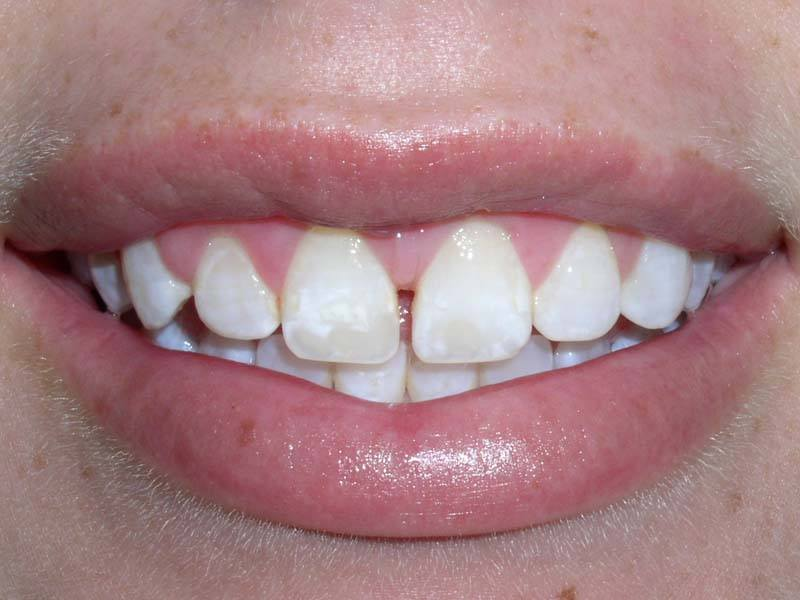 spaced out teeth before dental bonding from Michael G. Dab, DDS in San Rafael, CA