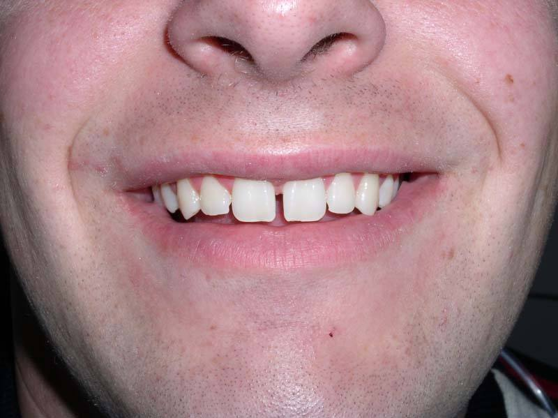 misaligned front teeth before dental bonding from Michael G. Dab, DDS in San Rafael, CA