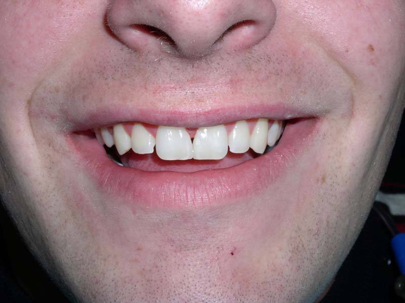 realigned front teeth after dental bonding from Michael G. Dab, DDS in San Rafael, CA