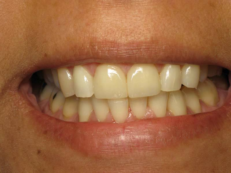 chipped front teeth restored after dental veneers from Michael G. Dab, DDS in San Rafael, CA