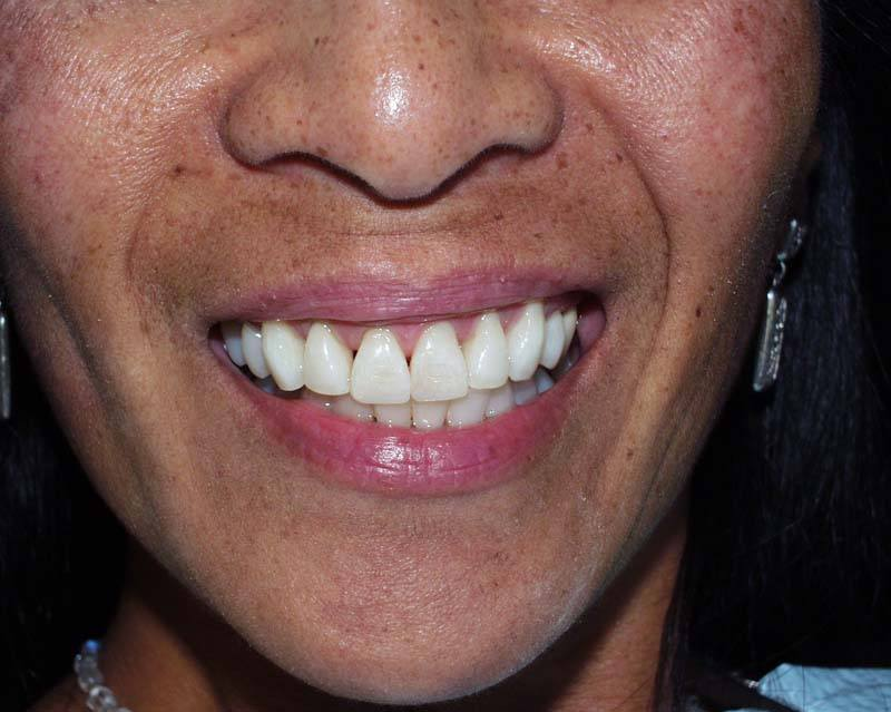 fixed teeth after dental veneers from Michael G. Dab, DDS in San Rafael, CA