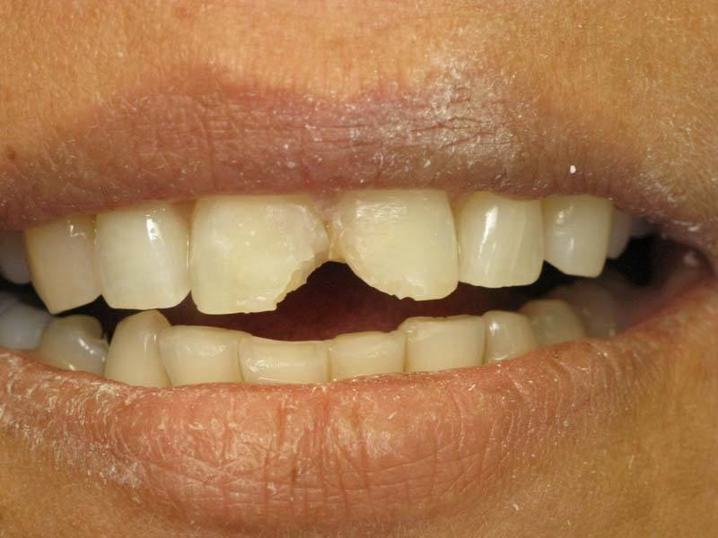 chipped front teeth before dental veneers from Michael G. Dab, DDS in San Rafael, CA